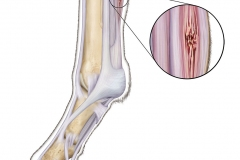Equine-tendon